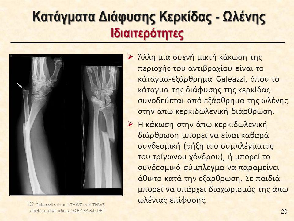 Κατάγματα Διάφυσης Κερκίδας - Ωλένης Μέθοδοι Χειρουργικής Σταθεροποίησης [1/2]